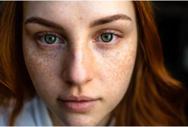 Określ rodzaj trądziku, który pojawia się na twarzy oprócz przyczyny